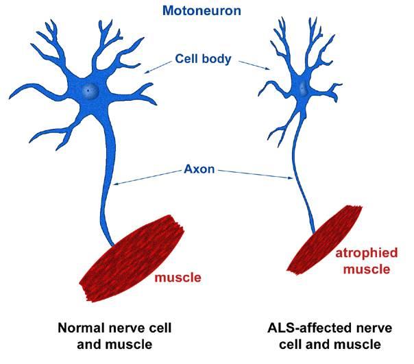 ALS1.jpg