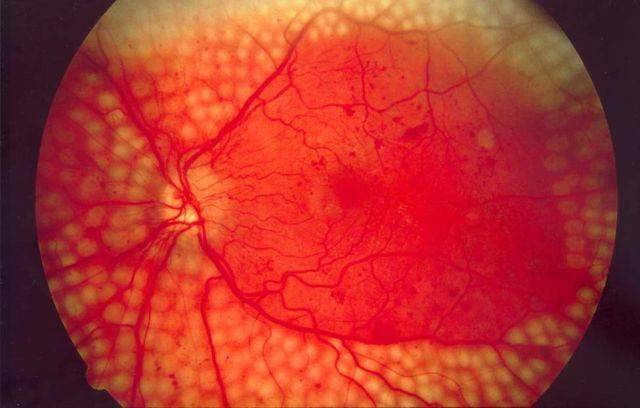 Fundus_photo_showing_scatter_laser_surgery_for_diabetic_retinopathy_EDA09-640x408.jpg